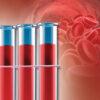 Fundamentals of Functional Blood Chemistry - - Speaker at Apex Seminars Functional Medicine Education