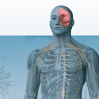 Neuroinflammation-Science-Clinical-Success-Hero